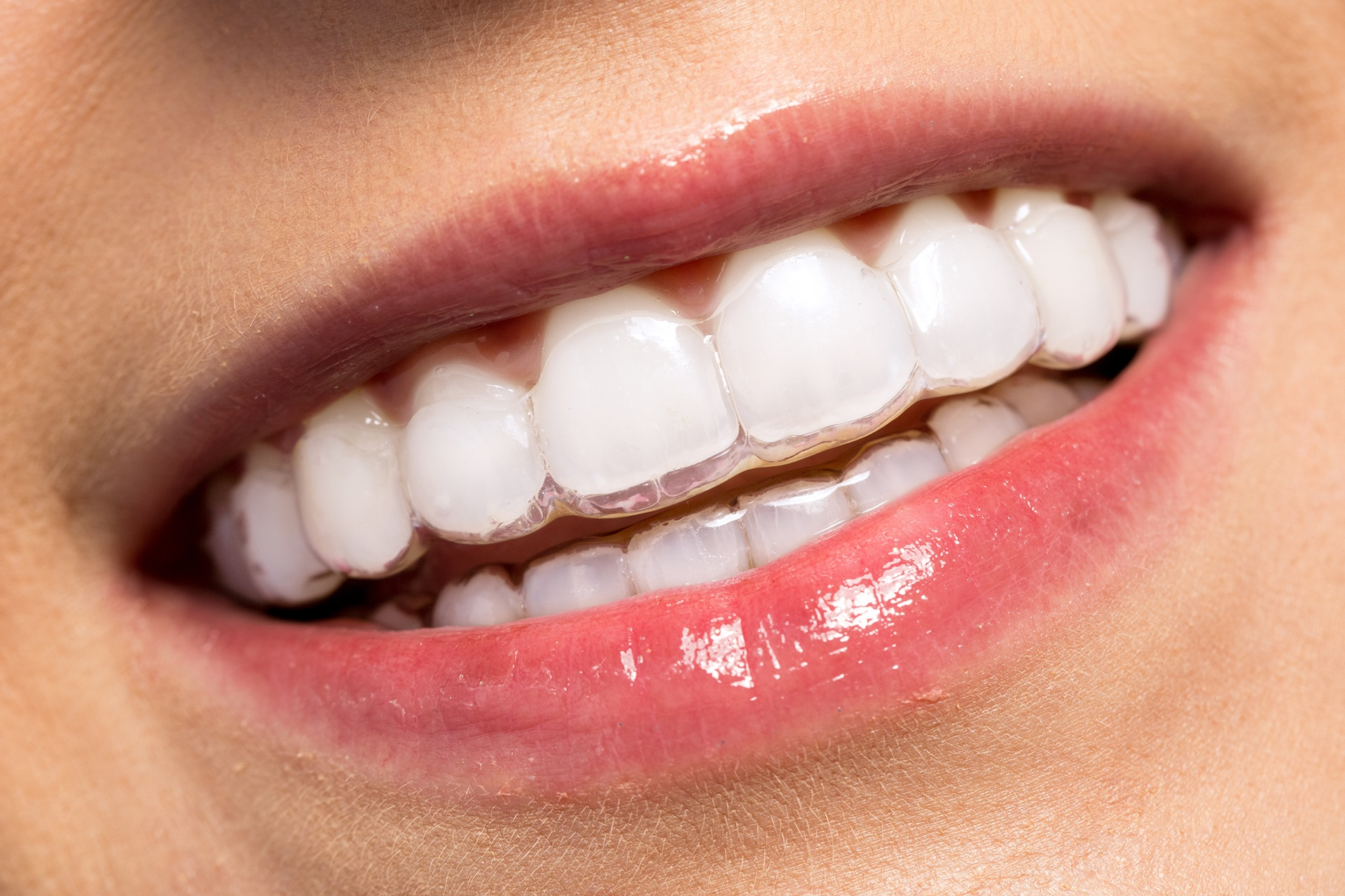 invisalign treatment long grove il